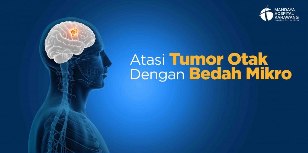 Atasi Tumor Otak dengan Bedah Mikro