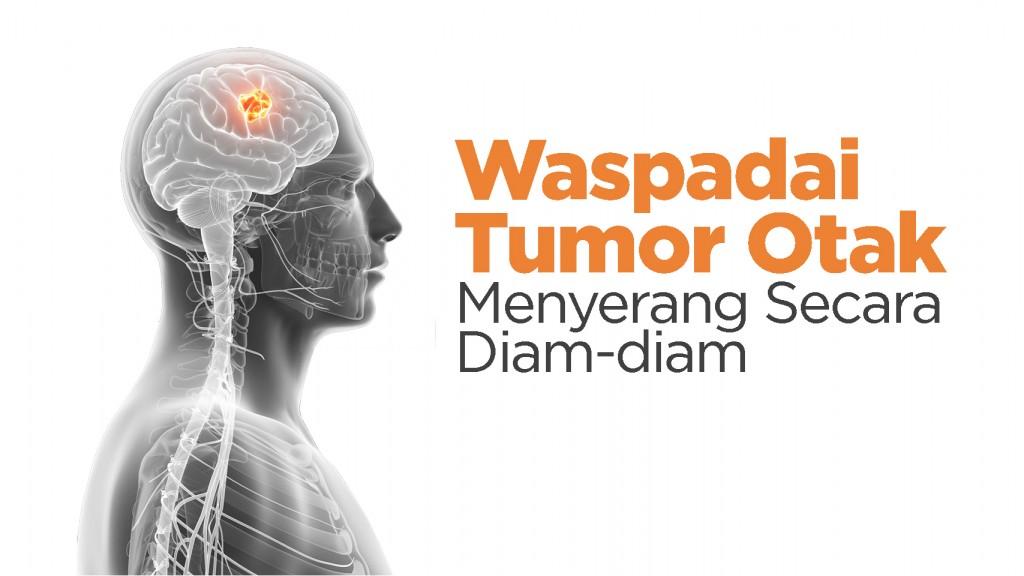 Waspadai Tumor Otak Menyerang Secara Diam-Diam : dr. Michael Norman J.,Sp.BS