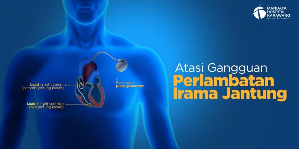 Atasi Gangguan Perlambatan Irama Jantung